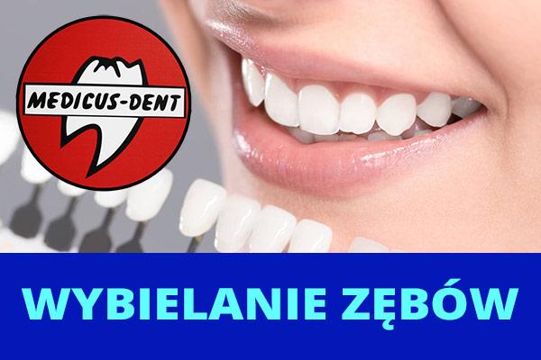 Medicus Dent - wybielanie zębów